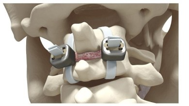 Photo of Implanet Granted Patent for JAZZ Lock® Implant in Japan