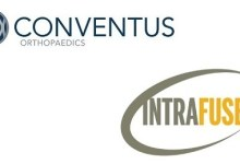 Photo of Conventus Orthopaedics Acquires Novel Intramedullary Technology from IntraFuse