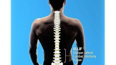 Photo of Inspired Spine Announces The Completion Of 1,000 OLLIF Procedures