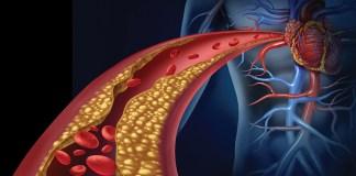 ipercolesterolemia-ipertrigliceridemia