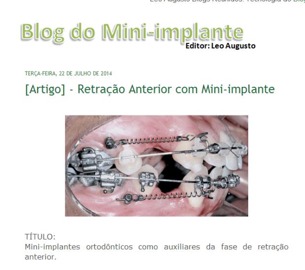 blog do mini