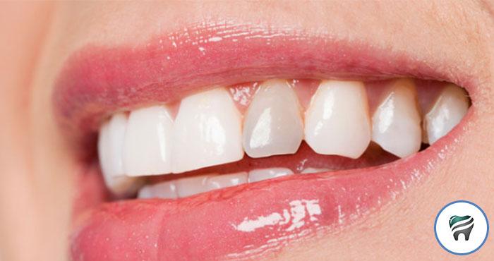 Video Super Top Reconstrucao Do Dente Para Tratamento Canal Ortoblog