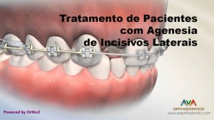 tmp_cover_Missing Lateral Incisor - Treatment Options - Orthodontic & Restorative Treatment_CDB77143