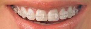 ortodontia_em_guarulhos