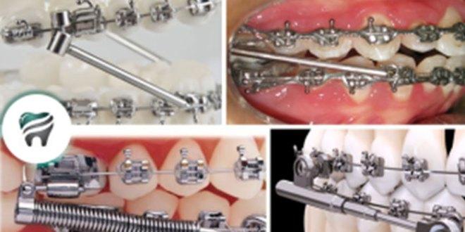COMPROVADO — PROPULSOR MANDIBULAR é a maneira mais eficaz de obter sucesso no tratamento da retrusão mandibular — VEJA, AGORA, ALGUNS EXEMPLOS!