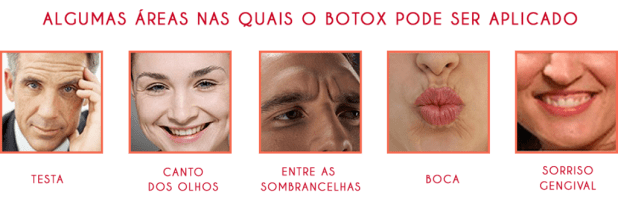 botox_faces1