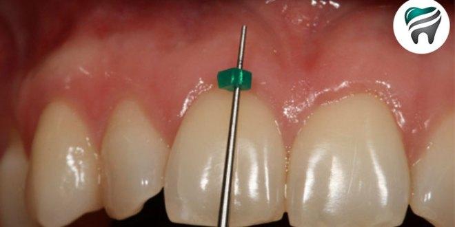 Para ter SUCESSO na utilização dos Mini-implantes — Veja esta classificação!!!