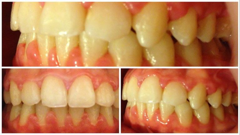 Dupa tratamentul ortodontic