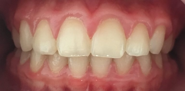 rezultate aparat dentar