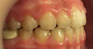 rezultat aparat dentar safir - dreapta