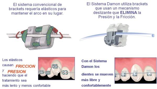 Diferencias entre sistema Damon y sistema convencional