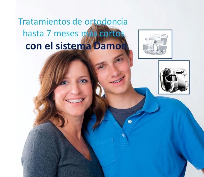 Diferencias entre sistema Damon y sistema convencional para tratamientos de ortodoncia
