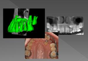 Canino incluido en el tratamiento de ortodoncia