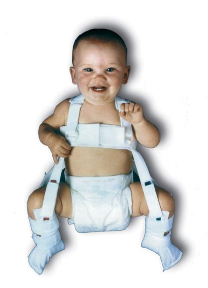 arnes pavlik ortesis infantiles cadera ortopedia tecnica vegueta las palmas
