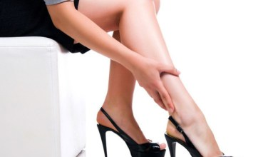 Разширени вени на краката - варикоза
