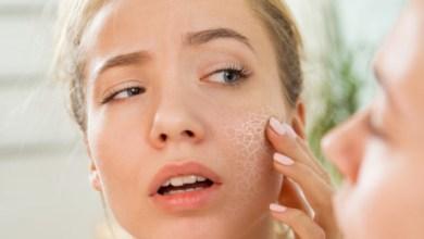 Суха кожа на лицето