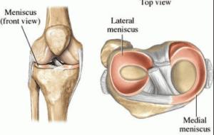 knee cartilage or meniscal tear anatomy diagram