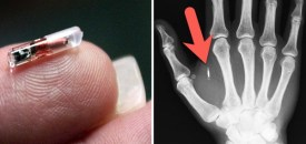 'Talks' about implanting UK employees with microchips creates alarm