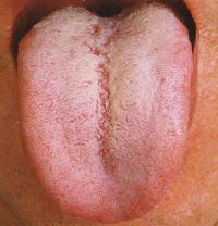 舌診 漢方 漢方薬 漢方相談 大阪のコンドウ薬局