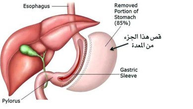 Photo of بعد عملية التكميم 9 حلول لمشكلات زيادة الوزن