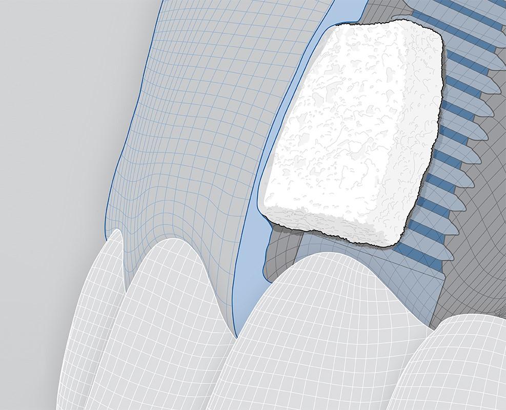 A breakthrough in soft-tissue regeneration