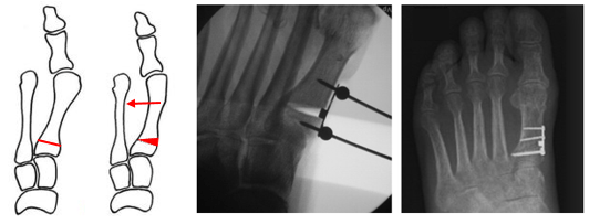 Χειρουργική του βλαισού μεγάλου δακτύλου