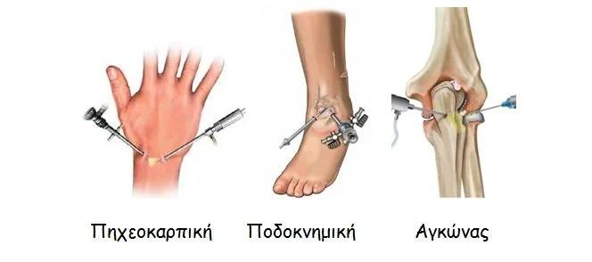 Αρθροσκόπηση πηχεοκαρπικής, ποδοκνημικής, αγκώνα