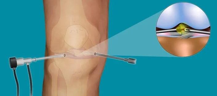 Αρθροσκοπική Χειρουργική Γόνατος