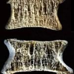 Οστεοπόρωση: η σιωπηλή νόσος των οστών