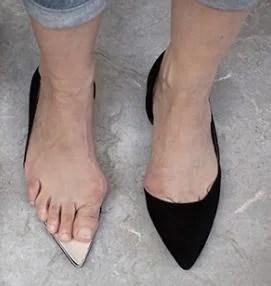 Στενό παπούτσι και κότσι: μια πολυετής σχέση