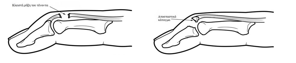 Σφυροδακτυλία (mallet finger)