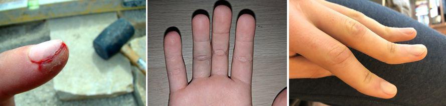 Κατάγματα δακτύλων