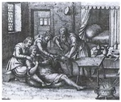 Chirurgijn verricht een beenamputatie onder uiterst primitieve omstandigheden. Rechtsonder de vuurpot met brandijzers om de wond dicht te schroeien.