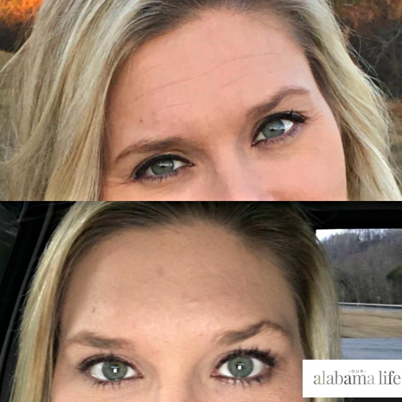 Botox | Elamar Skin Science - Our Alabama Life