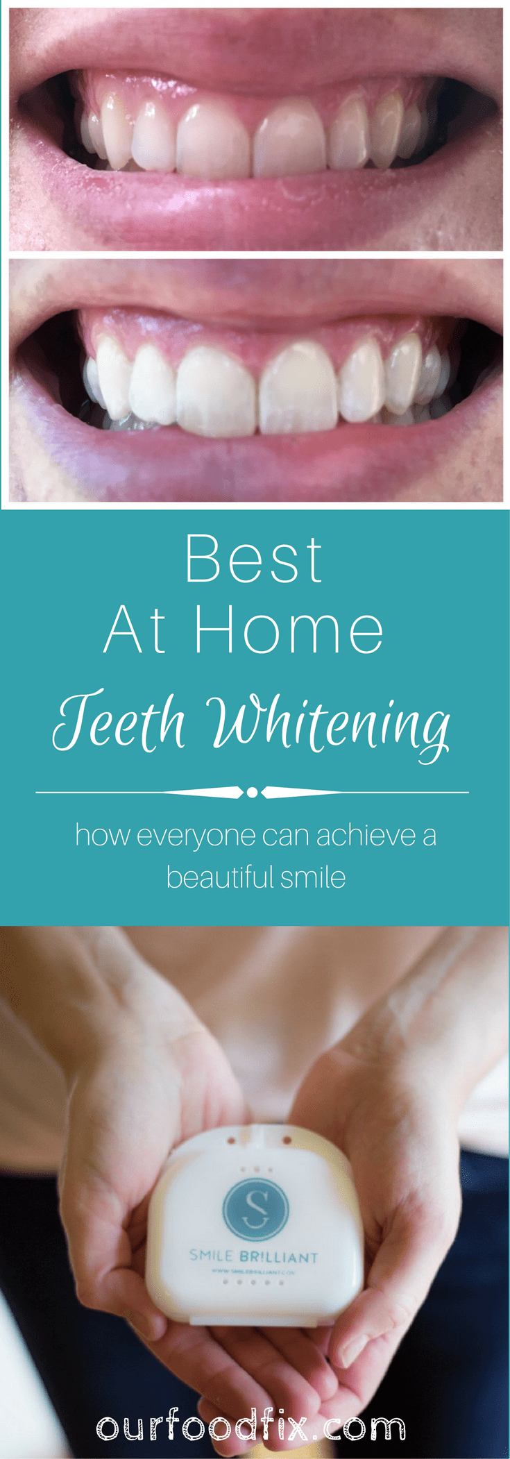 How to achieve your best smile with the most effective and simple to use at-home teeth whitening kit. Even an option for those with sensitive teeth. Ad| Teeth whitening | Teeth whitener | Beauty | How to | Tutorials | DIY beauty | Personal care #teethwhitening #teethwhitener #smilebrilliant