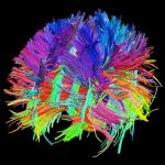 Brain Activity Map: boondoggle or bonanza?