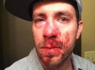 Straight man attacked after defending gay people