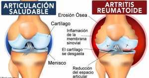 Articulaciones afectadas por procesos artríticos