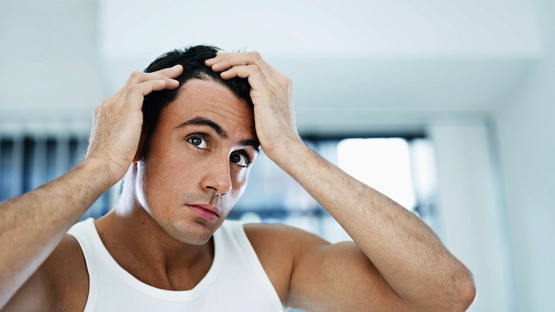 How to stop male hair loss naturally