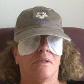 ooglidlifting cap