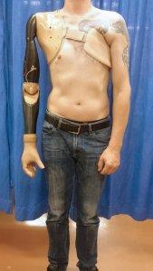 Protesis brazo 1