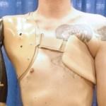 Desarrollaron una prótesis que sigue las órdenes mentales del paciente