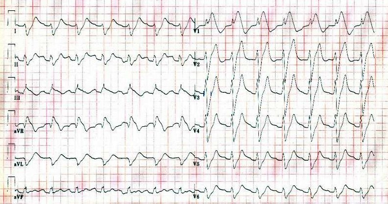 ECG (EKG) examples and quiz - Oxford Medical Education |Ekg Examples
