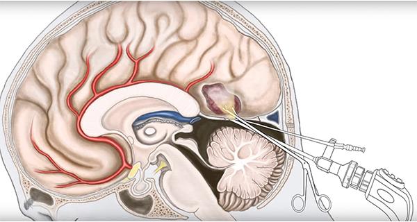 Image result for schwannoma tumor