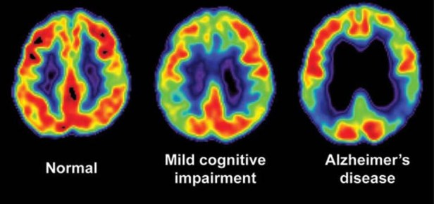 Brain Imaging for Alzheimer's & Dementia | Pacific Brain Health Center