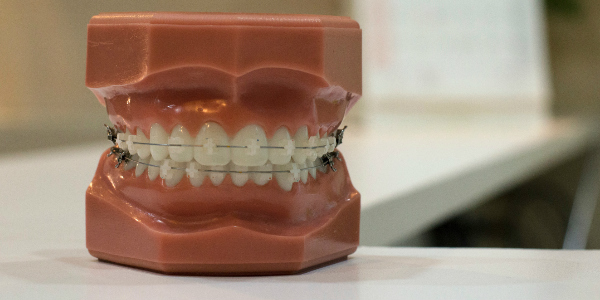 Teeth to represent dental insurance in Hong Kong