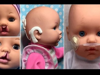 Con labio leporino, aparatos para sordera y hemangiomas, bebés inclusivos rompen esquemas