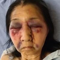 Mujer afroamericana ataca a mexicana al confundirla con asiática