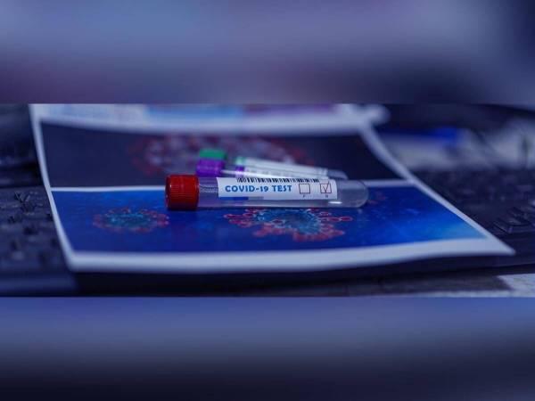 Prologation du délai de carence pour un test PCR