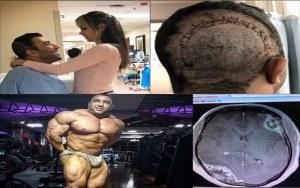isaac qavidel ifbb pro rak mózgu